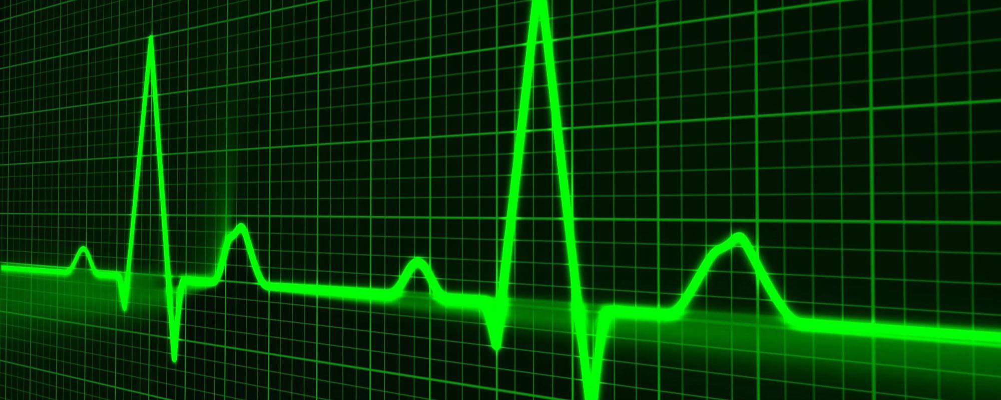 Bild på hjärtfrekvenser